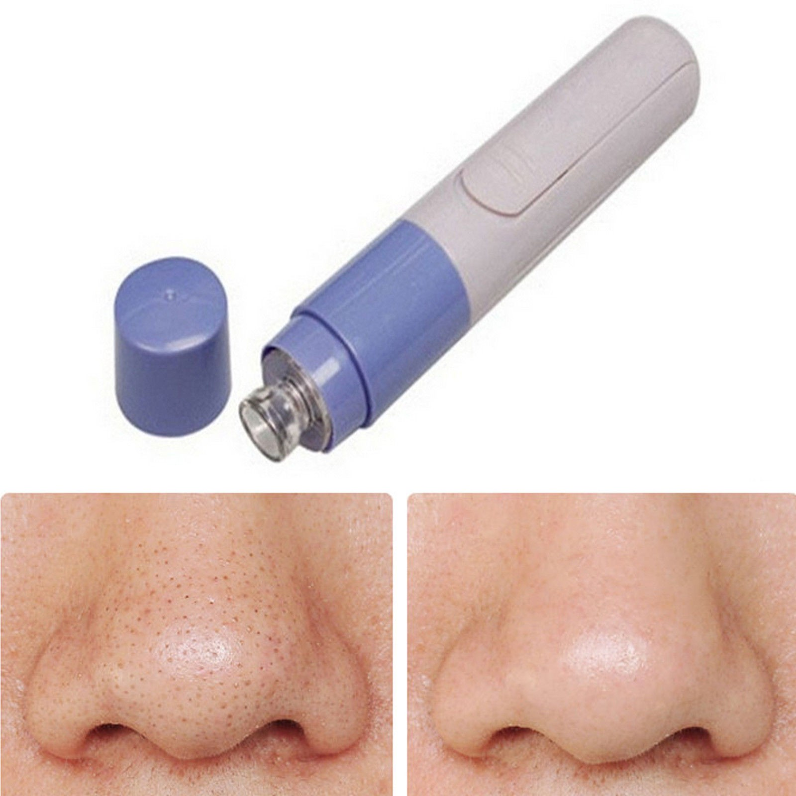 Electronic Facial Pore Cleaner Blackhead Remover